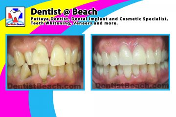 Smile Makeover & Cosmetic works