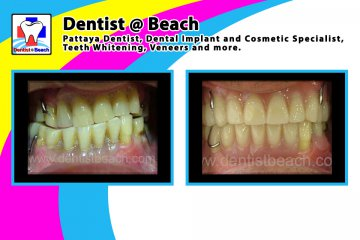 Makeover Removable dentures