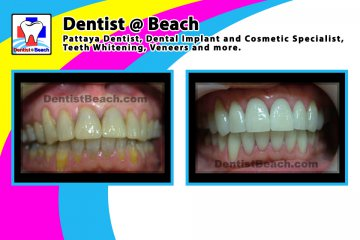 Full mouth porcelain veneers