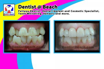 Only few upper teeth makeover